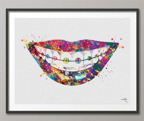 Orthodontist Gift Ideas - Braces Art Print